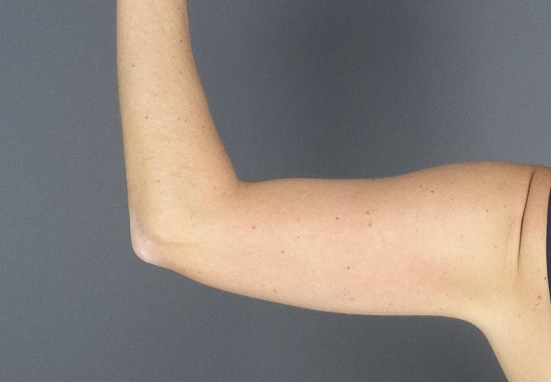 Nachher- Bild vom Arm mit CoolSculpting Salzburg