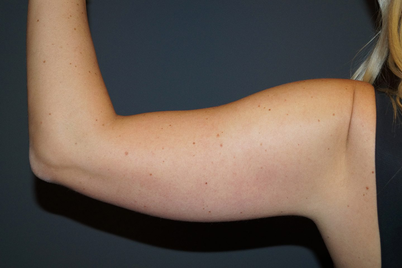 Vorher-Bild vom Arm CoolSculpting Salzburg